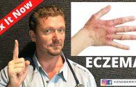 ECZEMA: Improve or Reverse