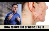 How to Get Rid of Acne Fast  vitamin B5