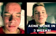 Acne and vitamin b5 (OUR STORY)